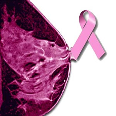 Breast Density and Breast Cancer Risk