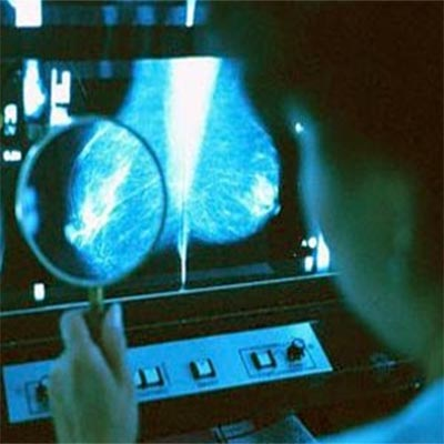 Diagnostic mammogram