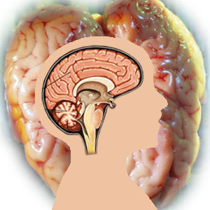 Cerebral Palsy