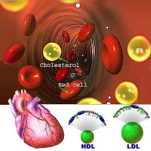 Cholesterol Levels for Women