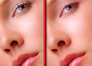 Cosmetic Dermal Filler