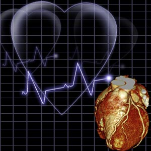 Framingham Heart Study Risk