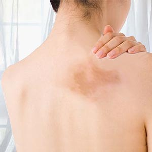 Discolored skin patches: pictures, causes, and when to see a doctor.