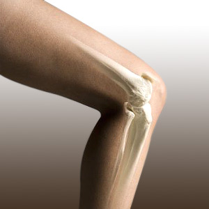 Knee Replacement for Women