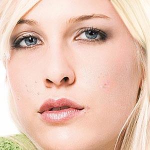 Makeup for Problem Skin