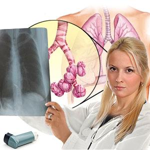 Sarcoidosis Disease