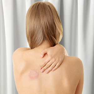 Skin Fungus Infection