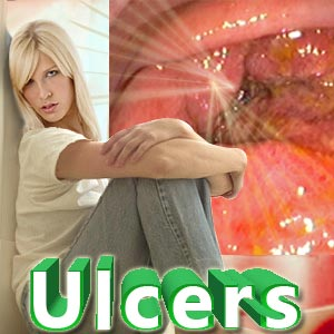 Causes of Stomach Ulcers