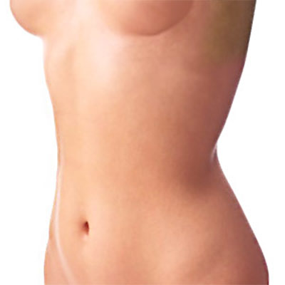 Umbilicoplasty Surgery