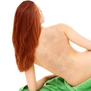 Vitiligo Skin Disease