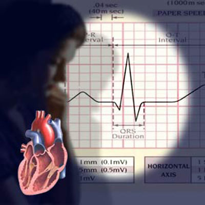 Women's Heart Attack Symptoms